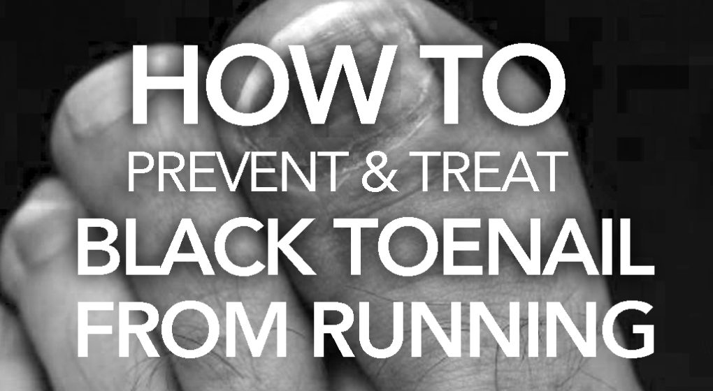 How to Prevent and Treat Black Toenail from Running